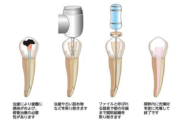 1.虫歯により歯髄に感染がおよび、根管治療の必要性があります 2.虫歯や古い詰め物などを取り除きます 3.ファイルと呼ばれる器具で根の先端まで腐敗組織を取り除きます 4.根幹内に充填材を密に充填して終了です